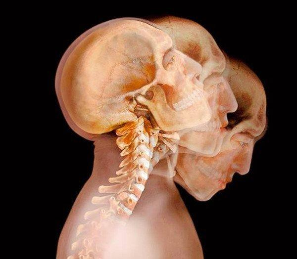 Чи варто боятися рентгена?!. діагностика, здоров'я, обстеження, радіація, рентген